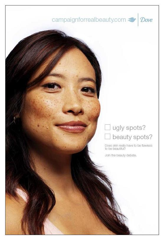 dove-freckles-b.jpg